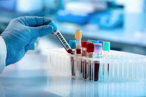 blood test, lab test, rheumatoid factor, Bone Coach